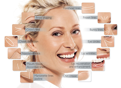 Cosmetic Procedures Face lift